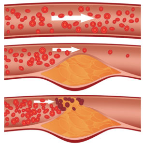 Ateroskleroosi teke. Foto: kolesterool.ee