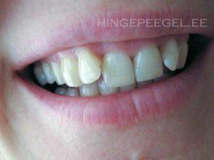 """Hambad pärast viiendat päeva """"solpsutamist"""""""