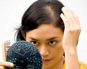 Hõrenevad juuksedFoto: Health com
