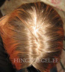 Pestud ja kuiv pea juuksejuurtelt