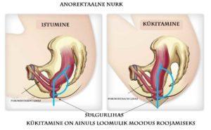 Käärsoole nurk potil kükitamine vs istumine Foto:Bio relief
