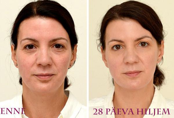 Sarah Smith enne ja pärast 3 l vee tarbimist kuu aja jooksul Foto: Mail Online