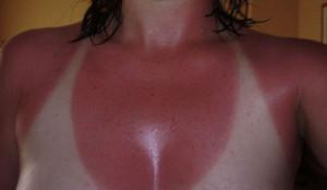 Päikesepõletus