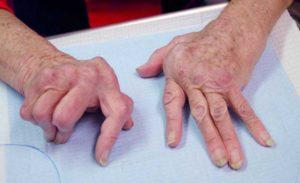 Artriidi haige käed Fot: CAC