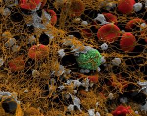 Fotol on näha rakke kaitsev fibriinkiht - pruunikas võrgustik, trombotsüütide agregaadid on hallid,  punalibled punased ning leukotsüüdid rohelised.