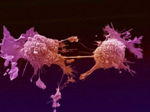 Kopsuvähi rakud mitoosi käigus Foto: The Biology Lair