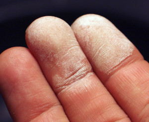 Lahjendamata 35% vesinikperoksiidi kahjustus nahal. Foto: Olli Niemitalo